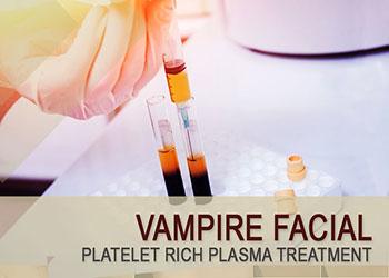 Vampire Facial a Platelet Rich Plasma Treatment